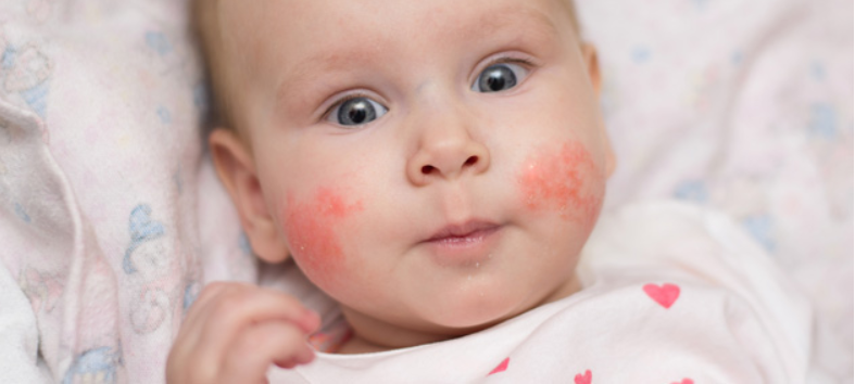 Eczema: Top 5 Tips in Preventing and Treating a Breakout