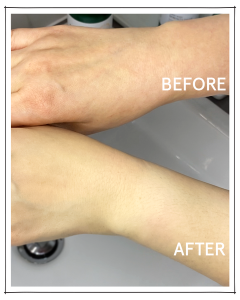 before and after results with hand mask by saint iris skincare