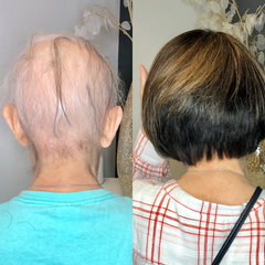 THLC - Hair System Before & After