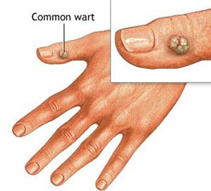 Superfoods To Treat Warts