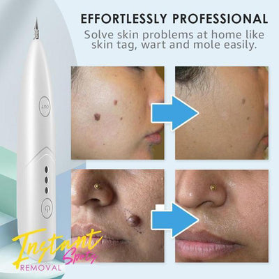 OFFER Painless Spots Removal Pen