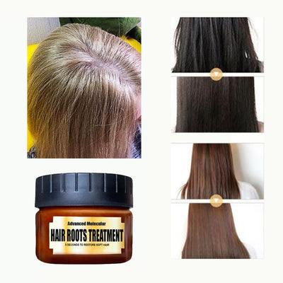 OFFER 2x1 Advanced Molecular Hair Roots Treatment