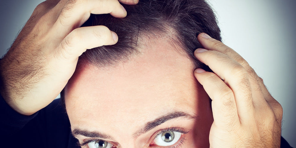 5 Ways to Help Get Rid of Dandruff