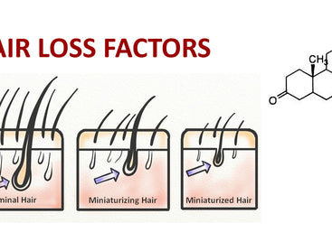 DHT and other key hair loss factors
