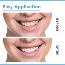 Whitening Strips Resultaat 14 paar 3D White Teeth Whitening Strips GlorySmile Advanced Ultra Witte 3D Teeth Whitening Strips