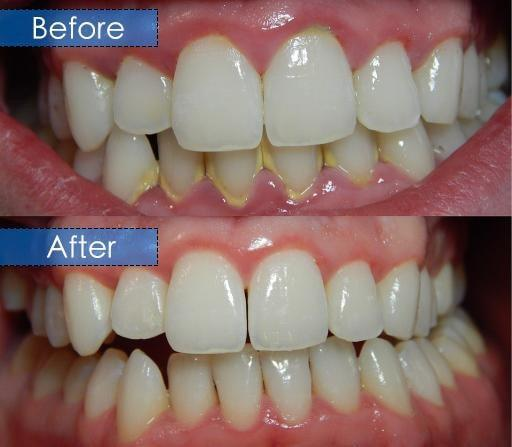 before after teeth