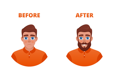 Beard Transplants Before and After