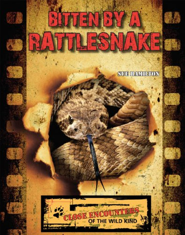 Bitten by a Rattlesnake (Close Encounters of the Wild Kind)