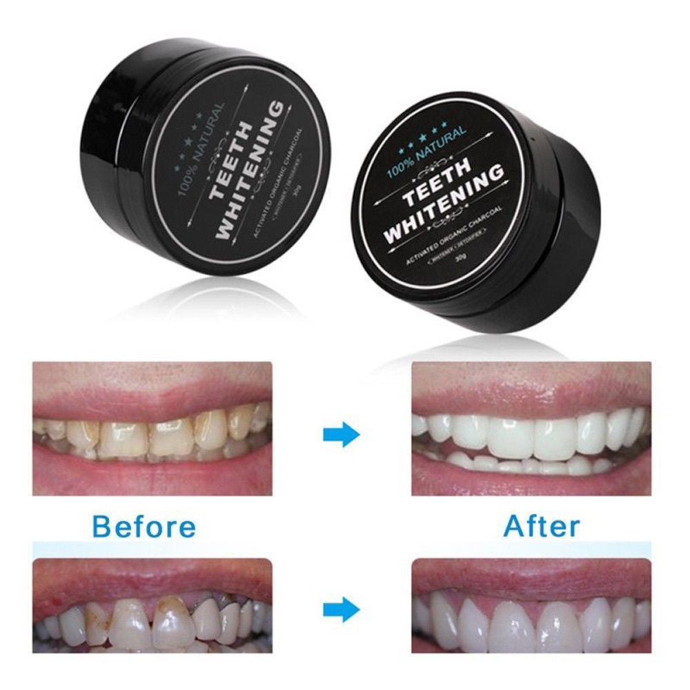 New Charcoal Teeth Whitning and Gum Detoxifying System