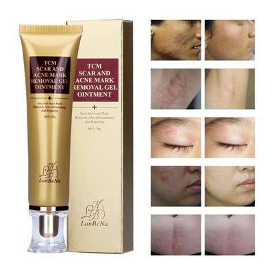 TCM Treatment Gel Scar And Acne Mark Removal (BUY 1 TAKE 1 TODAY) With Surprise Gift