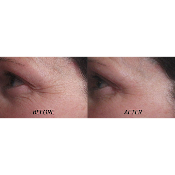 Eye Gel  - tighten tired and puffy skin - NZ Made Skincare Sub & Tarctic