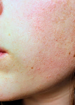 Dealing with Rosacea