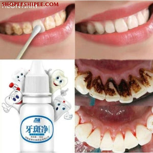 10ml Teeth Whitening Oral Hygiene Water Cleaning Teeth Care Tooth Whitening Cleaning Water Clareamento Dental Odontologia Tool - ShopeeShipee
