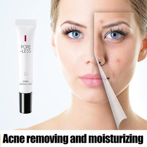 20g Acne Cream Delicate Repair Acne Scar Mark Shrink Pores Moisturizing Oil Control Beauty Face Purifying Remove Acne Cream