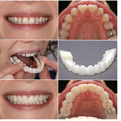 Teeth Whitening Dental Cover