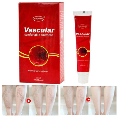 VARICOSE VEINS REMOVAL CREAM