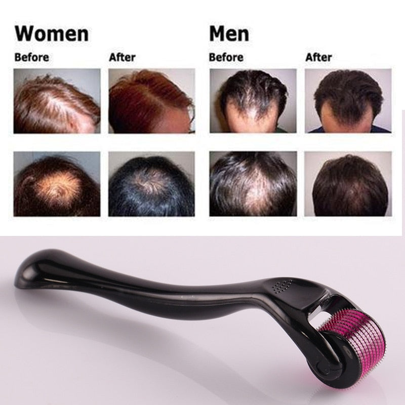 The Original Titanium Micro Needle Hair Regrowth Roller