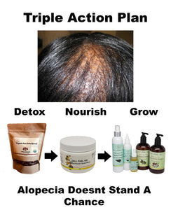 Got Alopecia? We've Got A Plan! Hair Loss Action Plan