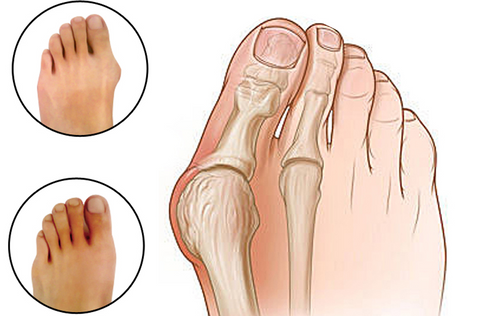 Image result for Gel Foot Care Tool Bunion Corrector gif