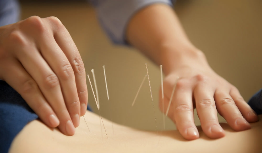 Acupuncture + Chinese Medicine are a Busy Woman's Best Friend