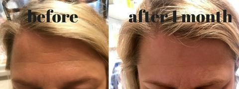 Derma-Rolling Before + After