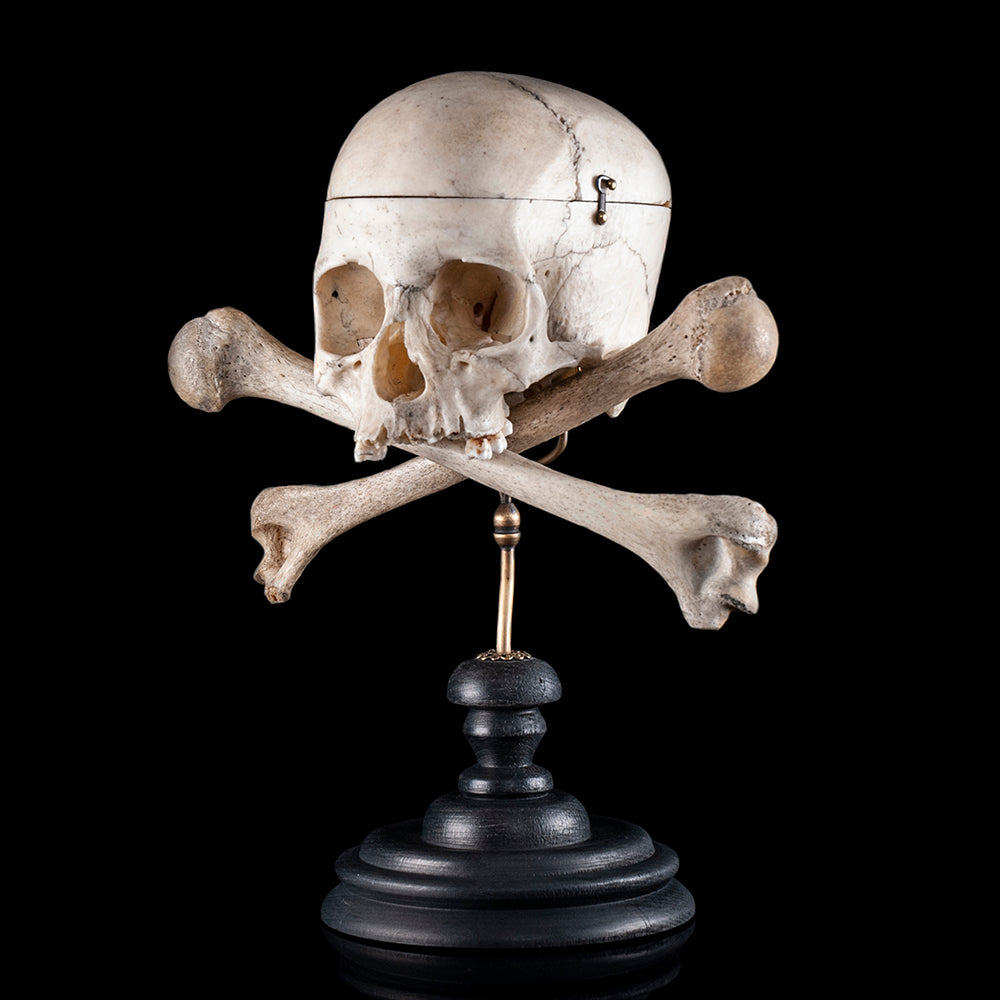 Real human skull & cross bones