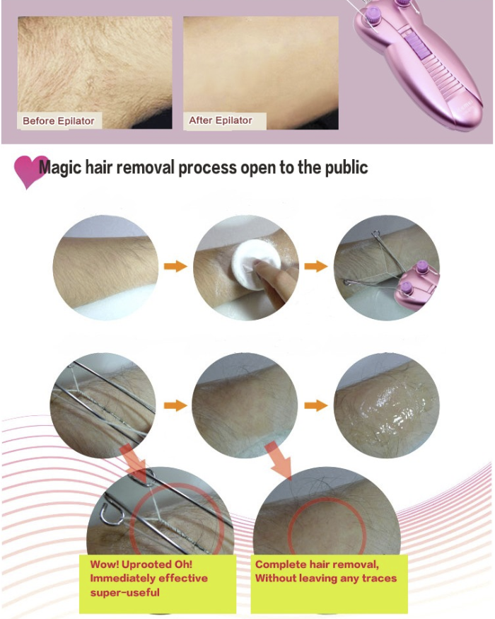 Revolutionary Butterfly Hair Removal - 60% OFF