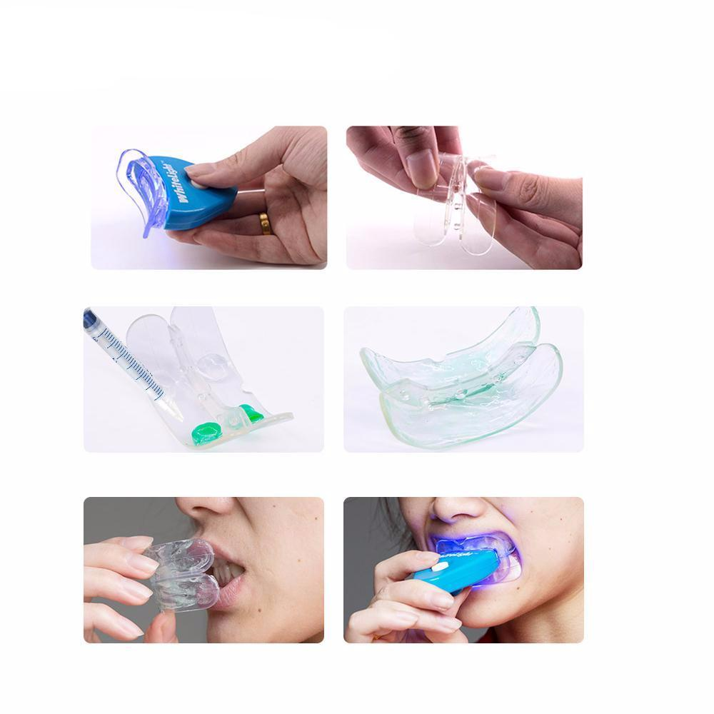 Dental Whitening Kit - 70% OFF!