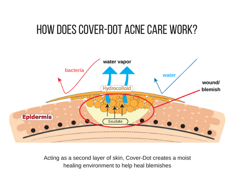 Acne tips tagged acne cure smartmed us what to do after popping a pimple ccuart Gallery