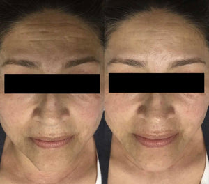 Dermaplaning - Package of 4 $299 (valued at $387)