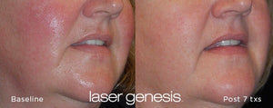 Laser genesis 5 treatments 50% off