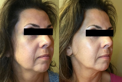 Restylane Classic or Versa, $623/syringe FIRST TIME clients only
