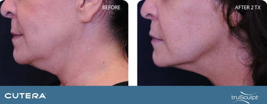 TruSculpt 3D under the chin 3 treatment 50% off