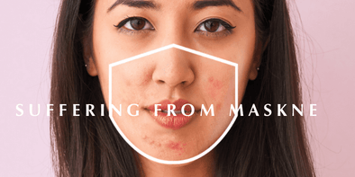 "6 Ways to Prevent ""Maskne"" (Mask Acne)"