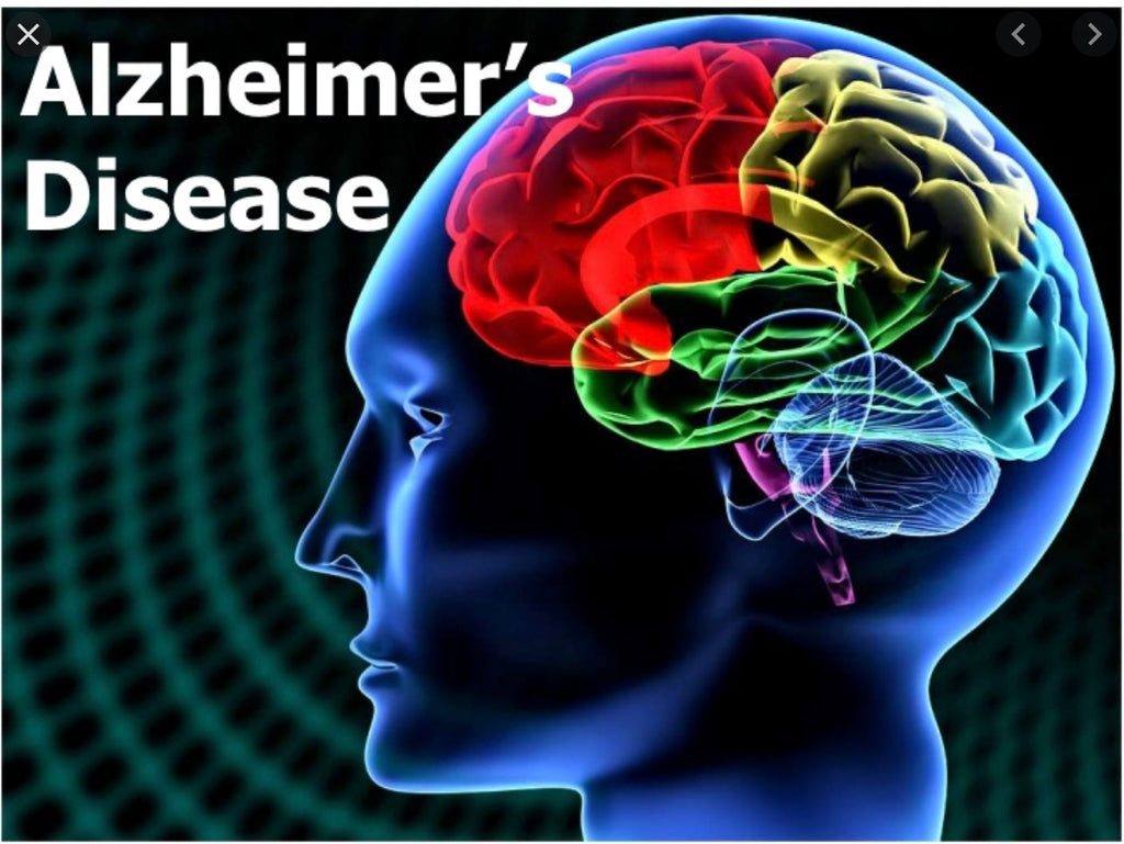 Alzheimer's and EVOO - Blog # 34