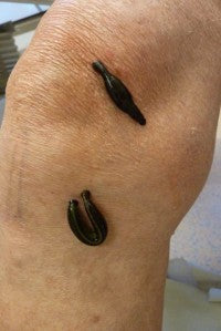 Leech therapy for osteoarthritis
