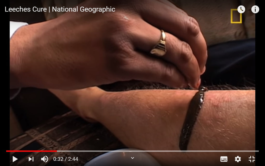 Video: National Geographic Leech Cure in India