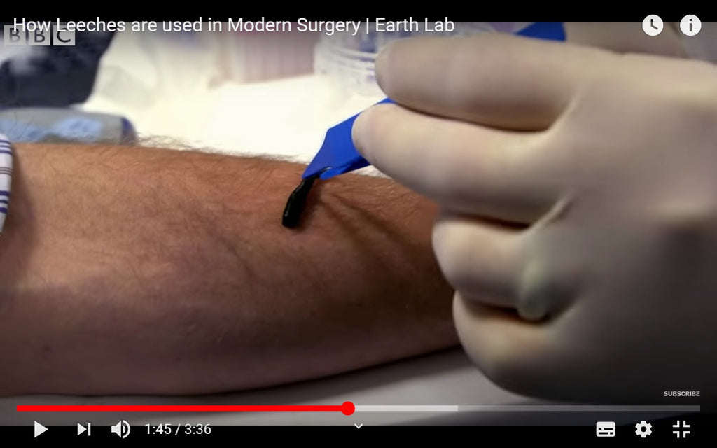 Video: How Leeches are used in Modern Surgery