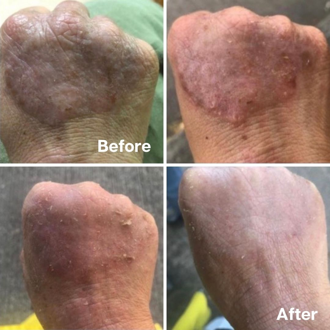 Golden 8 Skincare Before and After 09