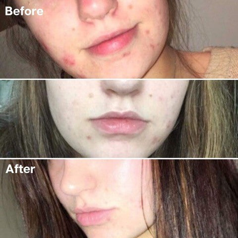 Golden 8 Skincare Before and After 01