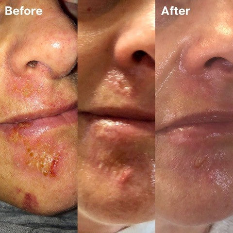 Golden 8 Skincare Before and After 02