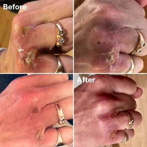 Golden 8 Skincare Before and After 03
