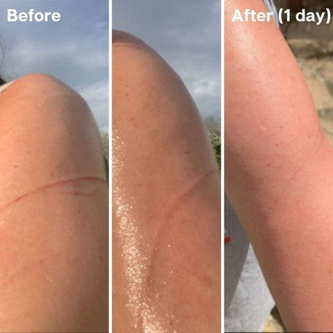 Golden 8 Skincare Before and After 04