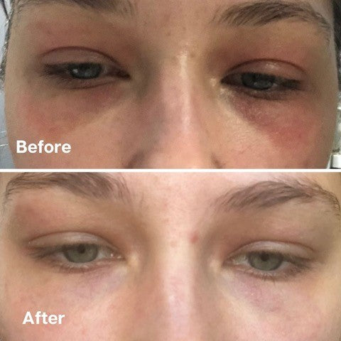 Golden 8 Skincare Before and After 05