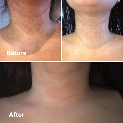 Golden 8 Skincare Before and After 07