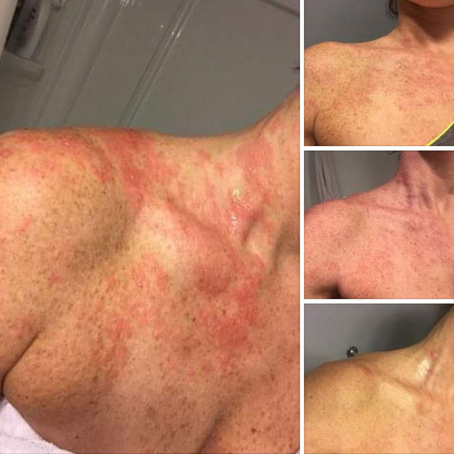 Shingles Before and After
