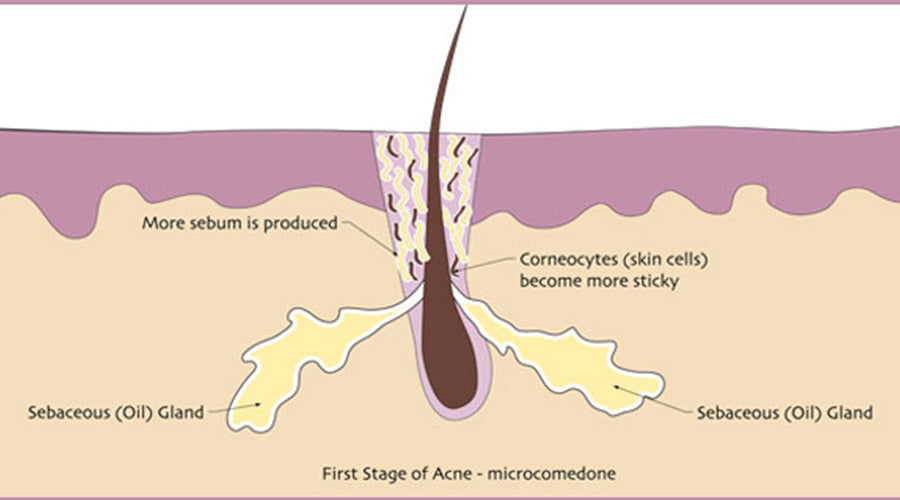 first stage of acne