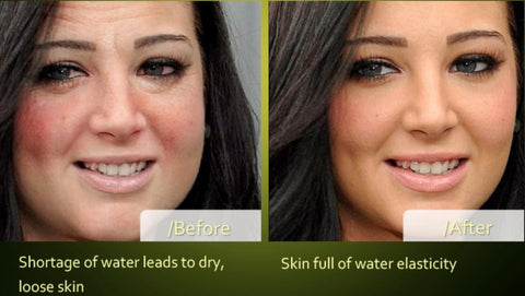 Another eg. of the results of using our Anti Wrinkle Serum. Get yours at smartcooldeas.