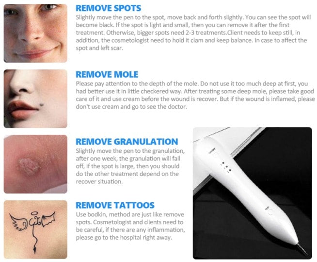 MiraclePen is a professional portable Cosmetic Laser that uses Plasma to remove mole, warts, freckles, dark spots, tattoo, skin tags, on the skin surface effortlessly and quickly.