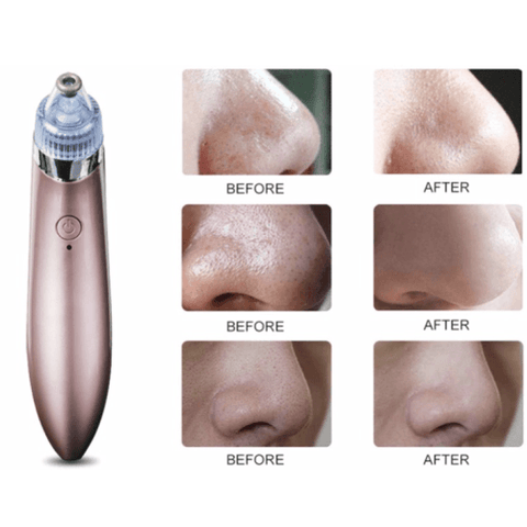 excellent 4 in 1 Vacuum pore cleanser